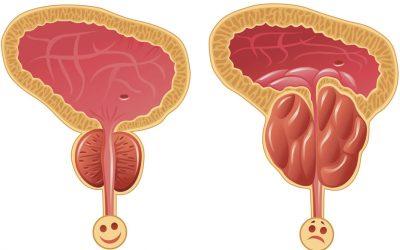 Entre el 30%  y  40 %  es el  porcentaje de hombres Argentinos que presentan cáncer de próstata