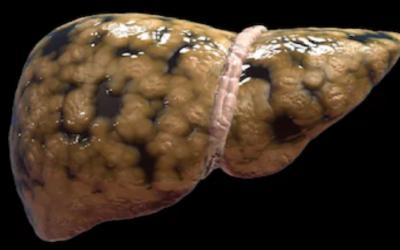 Enfermedad del hígado que afecta a personas no alcohólicas
