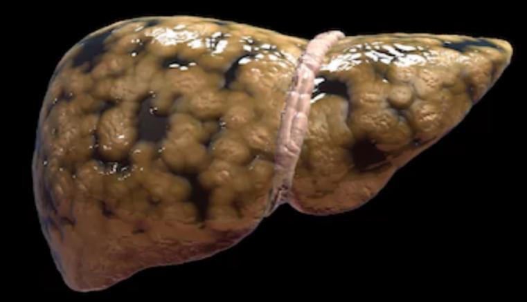 ¿Cuál es la enfermedad del hígado que afecta a personas no alcohólicas?