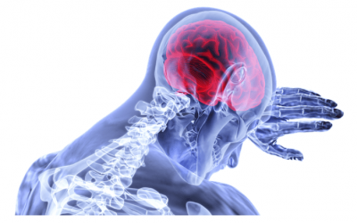 Los primeros minutos de un ataque Cerebrovascular son los más peligrosos