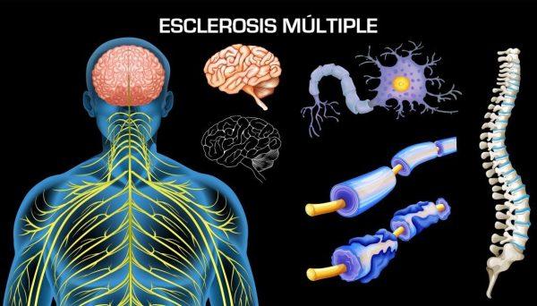 """Esclerosis múltiple… """"seguimos diagnosticando tarde"""""""