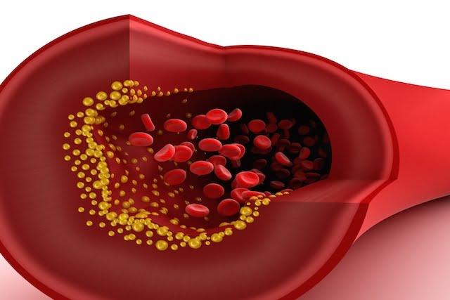 Conozca más sobre el colesterol HDL en la sangre