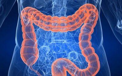 El cáncer de colon tercera causa de muerte a nivel mundial