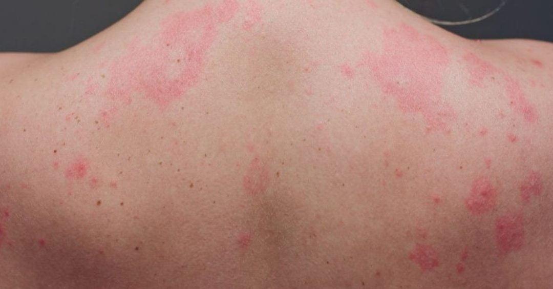 Nuevos síntomas en la piel producidos por la Covid-19