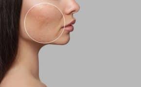 ¿Cómo eliminar el acné? – 4 métodos caseros